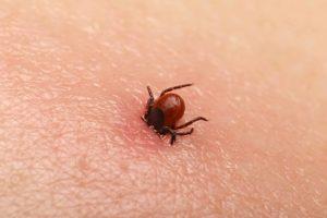 Cosa è la malattia Lyme